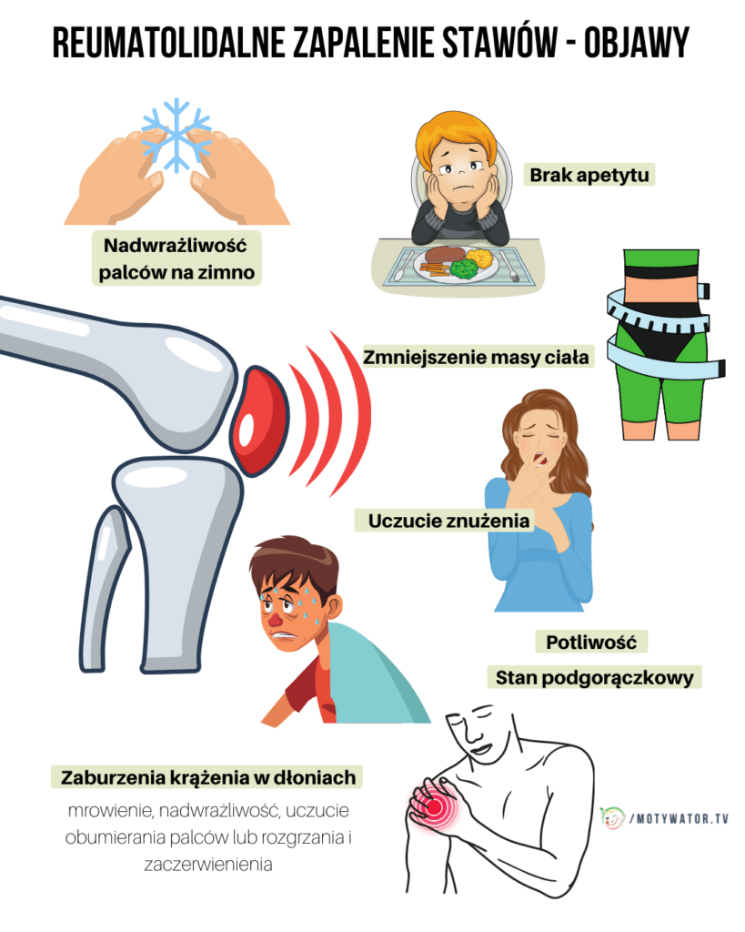 reumatolidalne-zapalenie-stawow-objawy-i-przebieg